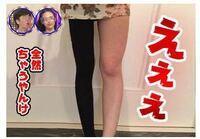 燃焼系レギンスの広告がインスタで最近よく出てくるのですが、この写真ありえなくないですか? レギンス履いて脚は細くなるのはあっても、膝まで細くなってます。膝の横側に肉はあまりつかないのでこの画像は加工だと思います。 ステマですよね?