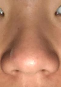 切れる 穴 鼻 の 鼻 の