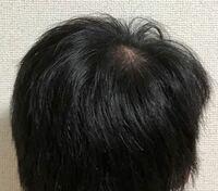 大学生で若ハゲ状態です。髪を短くしているのですが、坊主にした方が良いレベルでしょうか。自分ではわからないので意見聞かせて欲しいです。