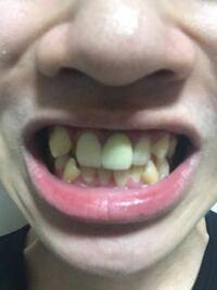 男子大学生です。この歯並びどう思いますか?八重歯のせいで中心がずれてます。周りからバカにされたり、かわいいとか、別にいいじゃんとか言われてますがかっこよくはないですよね? やっぱ矯正した方いいですかね?