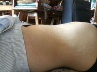 仰向けで寝た時に、下っ腹が少しぽっこりします。(※写真あり これは普通のことでしょうか?  慢性便秘です。お腹の肉割れが酷くて見苦しいと思います..。(過去40キロ以上のダイエットをしたため)  回答宜しくお願...