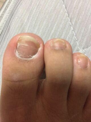 の の 臭い 爪 親指 足