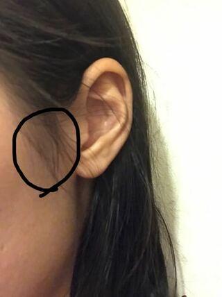 痛い 頬骨