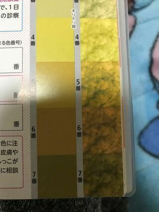 の 色 ウンチ 新生児