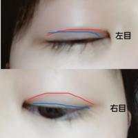 奥二重から二重の癖付で悩んでます。 左目は目尻の方はくせが着いているのですが目頭の方が変な所から奥二重の線が出ていて目頭の方がアイテープを使っても上手く線がつきません。 右目はまつ毛の根元の所の奥二...