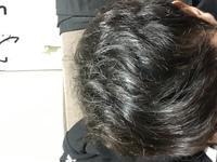 天然パーマな髪型について真剣に悩んでます。 風呂上がりの髪型なんですけどもうどうみても汚くて、とても外に出れる状態じゃないです。似合う髪型にしようにも髪質と髪型のせいでまったく決ま りません。 雨の日は外に出るのが憂鬱で、何をするにしても気分が上がりません。 そのせいで昔から髪型が凄いだの汚いだの言われ、性格までネガティブになりました。 今では毎日ヘアアイロンで伸ばす毎日です。 中...