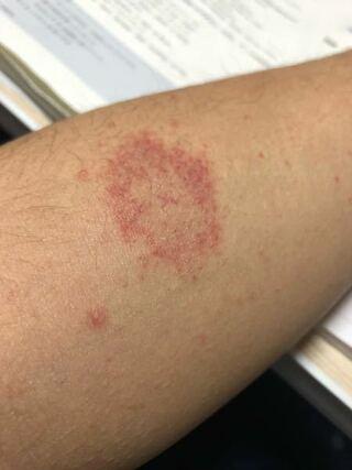 に ない 痒く 赤い 足 斑点