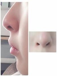 鼻がブサイクなのがコンプレックスです。 横から見ると鼻の穴が丸見えで 面長な顔もあって馬面に拍車がかかります。 鼻の整形を考えていますが この場合どこを整形すれば可愛い鼻になりますか?