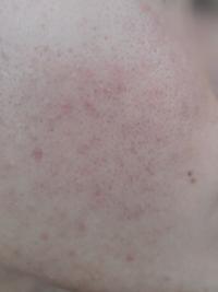 【写真あり】色素沈着?や毛穴汚れを綺麗にする方法を教えてください。 今しているスキンケアは朝にぬるま湯で洗顔、夜に洗顔料で洗顔、洗顔後に化粧水と乳液を基本に夜はビタミンC誘導体入りフェイスパックと3日に1回夜の洗顔の代わりにクレイパックをしています。 使っているのは、 洗顔料︰ロゼット洗顔パスタ荒肌用 化粧水︰美顔水の後にハトムギ化粧水 乳液︰大豆イソフラボン含有乳液 クレイパック︰TSUR...