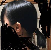 これは絶壁頭ですよね?