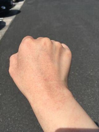 が 赤い 手の甲