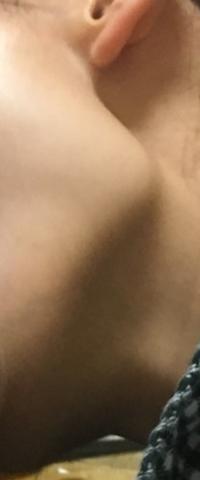 これってエラですか? エラと骨格は同じなんでしょうか? また、これは削らないとどうにもなりませんか?