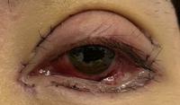 3日ほど前に全切開、目頭切開、目尻切開、グラマラスラインをしました。左目の目ん玉が内出血をしました。かなり赤いです。大丈夫なのでしょうか?