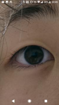 目頭切開と二重の整形をしたいのですがオススメの整形外科を教えて欲しいです。 それと写真のこの目だと、どのくらいお金がかかるか知りたいです。