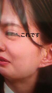 欅坂46の松平璃子ちゃんってアイテープですよね?けやかけ見てたらアイテープぽいの着けてたんですけど…