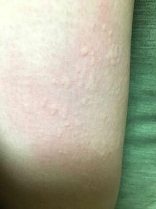 蕁 麻疹 ふくらはぎ