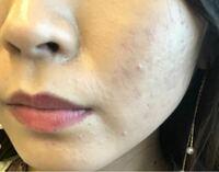 肌について。 化粧をすると肌がいつもこのような感じになります。浮いている?のか、乾燥してるのかどうなんでしょうか?鼻周りはドロドロしています。  乾燥しているのですか?それとも肌のキメが荒いのですか?...