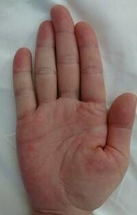手相鑑定をお願いしますm(__)m 32歳 女です。 よろしくお願いします。  中指の第一間接に、ほくろがあります。 皮膚の中の方に入りこんでいるようなほくろです。