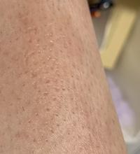 ムダ毛処理をカミソリでしていたのですがカミソリ負けしてしまい痒くて掻いてしまうので、毛が伸びきってから(4-5日くらい?)除毛クリームを使用しました。使用後アロエクリームで保湿している とヒリヒリしてき...