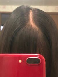 中学生女子です。これってハゲですか?、元々生まれた時から髪はおもくなく少ない方です。分け目変えた方がいいのでしょうか。 男子にハゲばっか言われてめっちゃメンタルきてて、、