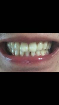 この噛み合わせは悪いのでしょうか? 歯列矯正したほうがいいですか?