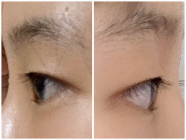 この目は出目ですか?奥目ですか? - 角度が違いますが左の写真が右目 ...