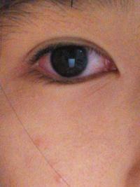 充血 真っ赤 の 目 Vol.15 目はどうして充血するの?