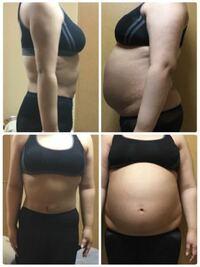 脂肪吸引したところ、ごっそりとれました。 びっくりしますか?? ちなみに1ヶ月経ちました。
