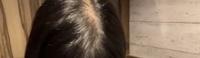 女子大生です。 友達とかに髪の毛薄いねと言われるので髪の毛結んでいなかったのですが、今日友達が私を上からとった時にすごい禿げてるなと思ったのですが、対処法とかあれば教えてください、
