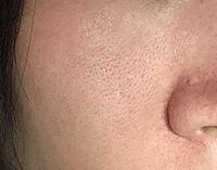 【閲覧注意】 毛穴の開きがひどいです 34歳女 頬と小鼻にかけて毛穴が目立ちすぎます 保湿をしっかりしても5分でこの状態です 寝る時には脂ぎとぎと、彼氏と寝るのも苦痛です 化粧も2分で 毛穴落ち アナス...