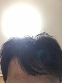 M字ハゲで前髪が天パなんですけど 似合う髪型ってありますか? 僕と同じ人がいれば変えた時の髪型を見せて欲しいです またオススメの髮型が教えて欲しいです