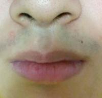 髭の剃り跡についてです。高校生なのですが、毎朝剃刀で髭を剃っています。その後化粧水も塗っています。下の写真は剃ってから18時間後の様子ですが、青髭っぽくなっていて見た目が悪いです。前まではそれほどで...