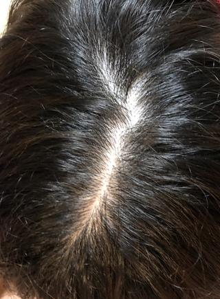 画像 頭頂部 20代 薄毛