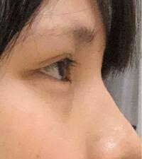 これは奥目でしょうか、鼻が高いと言われます。小粒目なのもありますが正面から見た時に本当に目が小さいです。眉毛下の皮が目に乗っかってるようにも感じますが、、、。どのようにしたら目が大きく見えるのでしょう か。