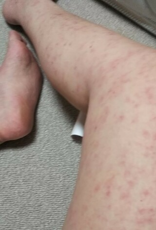 症状 猫 アレルギー