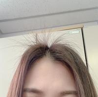 髪の毛のてっぺん(おでこの辺り)から、3、4センチほどの髪の毛が沢山生えてきています。 どれもほとんど同じ長さなので同時期(3.4ヶ月前?)に生えてきたものだと思いますが、その時期にこのあ たりの髪の毛を抜いた覚えもないのに不思議です。  パヤパヤと生えてきているのでパイナップルみたいで恥ずかしいです。朝オイルで寝かしてもお昼にはまた上にあがっています。  なぜいきなり一箇所から毛...