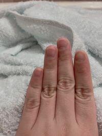 元々爪を噛むくせがあり、6年前からは噛まないようにしていたのですが、噛んでいなくても形がおかしく、爪切りで短くきると噛んでいる爪みたいになってしまいます。 どうしたら綺麗な形に伸ばせますか…