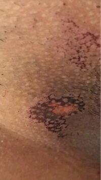 画像あり。デリケートゾーンの脱毛です。 1週間前、2回目のiゾーンの医療脱毛をしました。 このように黒くなってしまい、中心部分は下着にくっついて、剥がれてしまったようです。 これは火傷ですか?また、跡は...