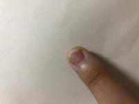 ネイルについて。 スカルプネイルが取れた時に自爪がちょっと持っていかれてしまって、かなり短くなってしまったんですが、この爪でもスカルプネイルはできますか? 次回ネイルサロンに行くま で1ヵ月弱はある...