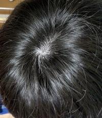 高校生です。 友達からつむじハゲてないと?言われて心配になりました。 これはハゲてますか? またハゲないようにする対策などあれば教えてください。  写真は風呂上りの髪を拭いた状態です。 ドライヤーはして...