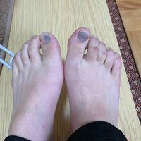 小さめの靴を履いてたらこうなりました。これはどうすべきですか? 押すと痛みがあります。