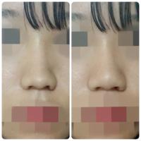 団子鼻、短い鼻、整形 左の画像から右の画像のような鼻になるにはどのような施術が良いのでしょうか?  鼻筋はあまり変えずに鼻先のみ自然に尖らせ、小鼻の広がりをなくしたいです