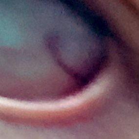 ゴロゴロ 目 だけ が する 片目