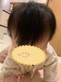 赤ちゃんの頭の形について質問です。  生後7ヶ月の娘のこめかみ?が左右かなり凹んでいて、ハチも張ってるいるのでそら豆のような形をしています。 赤ちゃんのときこめかみが凹んでた方みえ ますでしょうか? ハチ張りは仕方ないと諦めていますが、こめかみは成長と共に膨らんできたり目立たなくなることはありますか?  正面から見ると普通なのですが、上から見るとこめかみの凹みが目立ちます。。