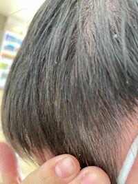 最近フケも多くて痒いてるせいで髪の毛も抜けてしまってます側頭部だけです また髪は生えてきますか?17歳です