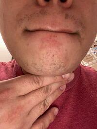髭脱毛についてですが現在メンズリゼで髭脱毛に通っています。2週間前にヤグレーザーというマシーンで計8回目の照射を行ったのですが、鼻下と顎の毛が抜けず、ダメージを受けた様子もないのですが、もちろん照射は漏 れなくしてもらってますが、何が原因なのでしょうか?
