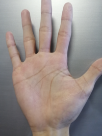 【画像あり】手相なのですが分からない線があります! 小指の下から斜めにハッキリと一本線があるのですがこれが何か分かりません なんでしょうか?