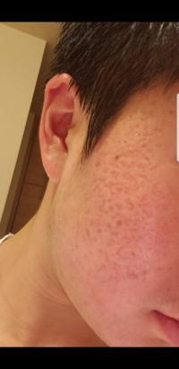 中学生男子です。ニキビに悩んでます。皮膚科にも通っているんですけどあまり効果がみられません。質問なんですけど、私のニキビは跡ですかね?後、このニキビはどのような種類のニキビ跡ですかね? レーザー治療...
