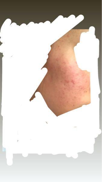 肌荒れが酷いです 赤みとニキビ、頬の毛穴、ニキビ跡全部酷いです 治す方法や教えてください