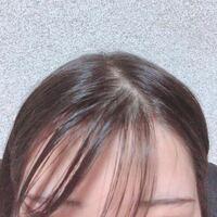 おでこが狭くて本当にコンプレックス かきあげとかおでこだしていろんな前髪にしたいのに出せません。 おでこを広くする方法を教えてください